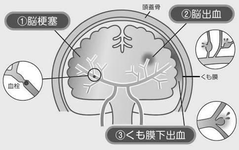 脳卒中はこれら3つの病気の総称