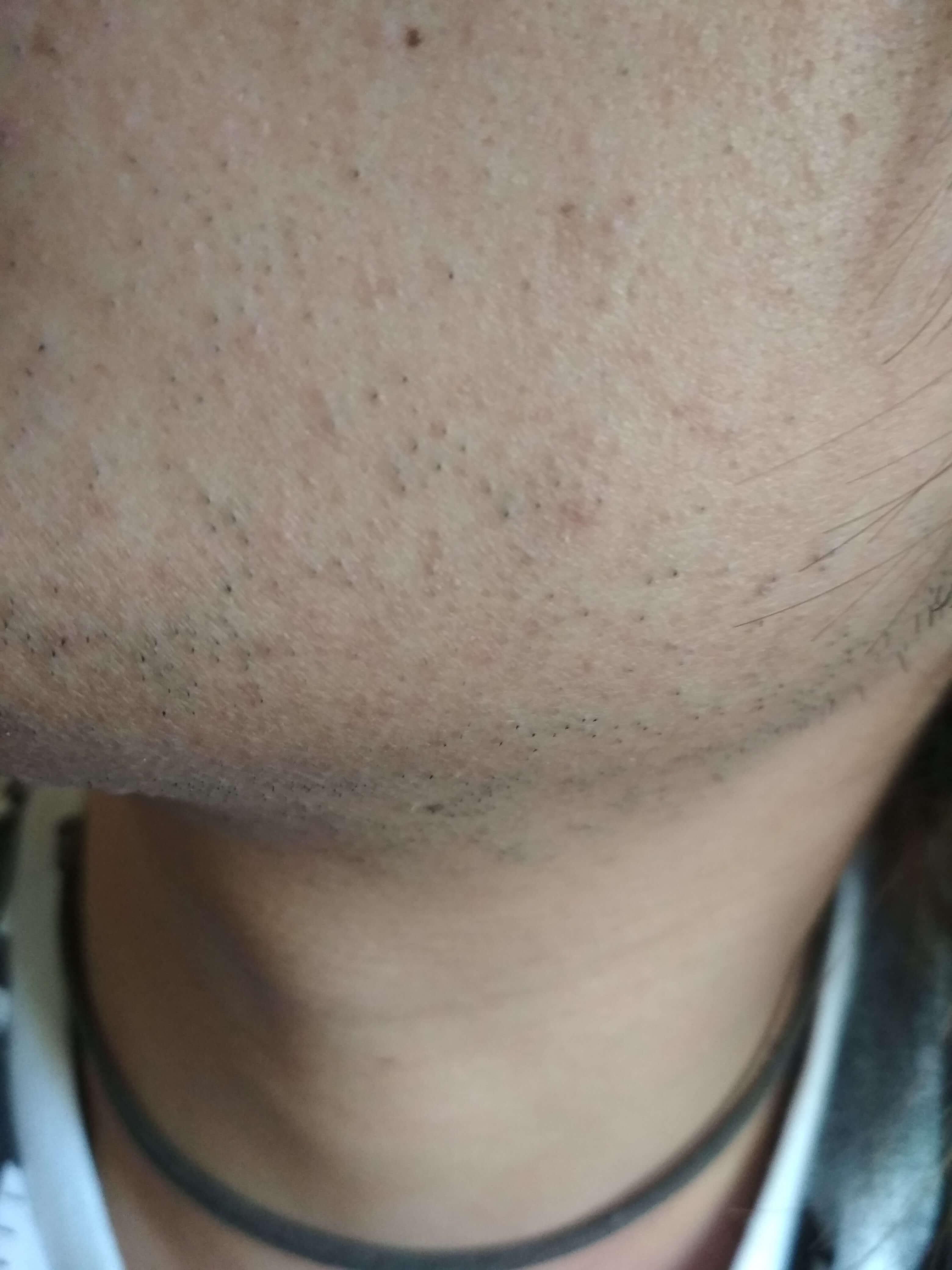 ヒゲ脱毛20日後